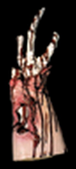 Arm Stump Prop